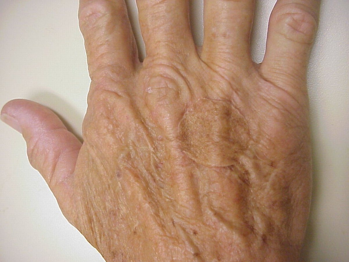 skin grafts Introduction a skin graft is the procedure to remove an area of skin from one  part of the body and use it to cover a wound in another area there are two.