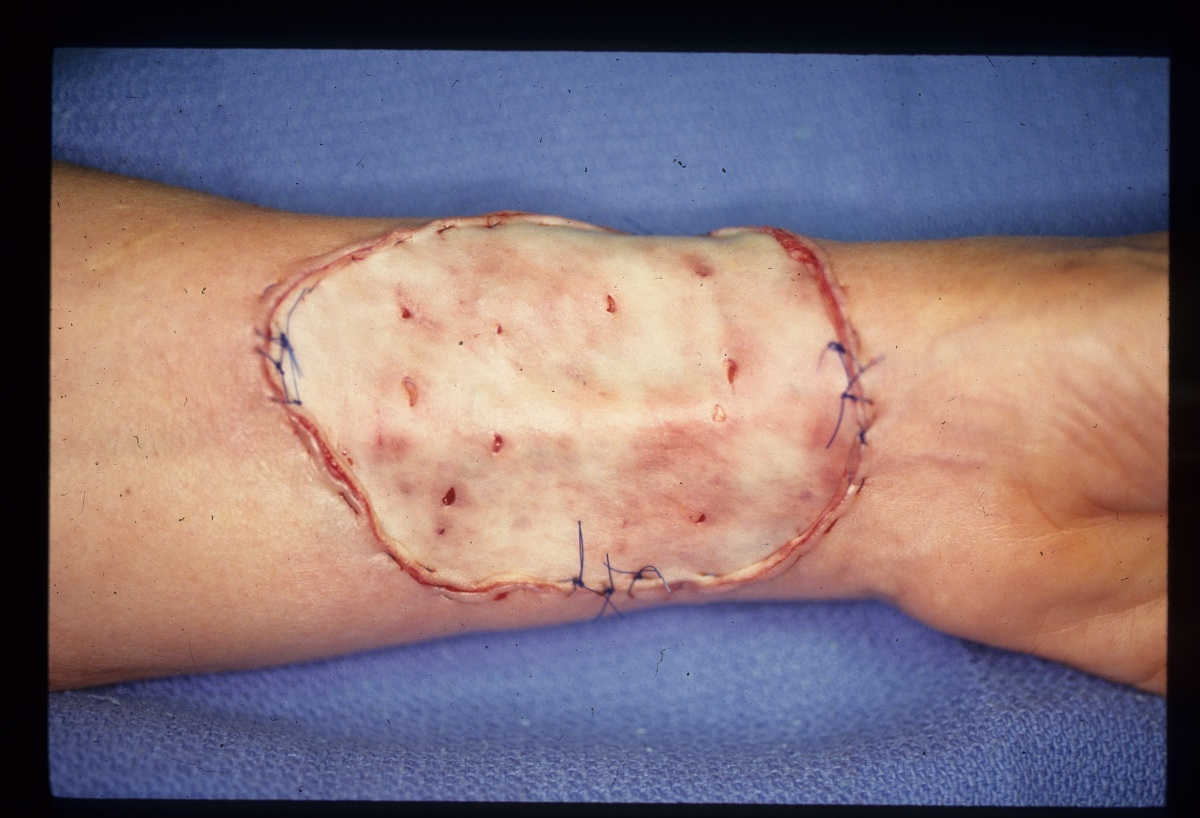 Plastic Surgery for Burns and Other Wounds