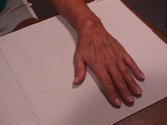 red swollen hand #10