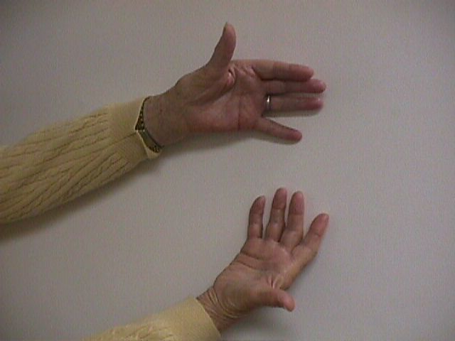 basal thumb joint arthritis jpg 422x640