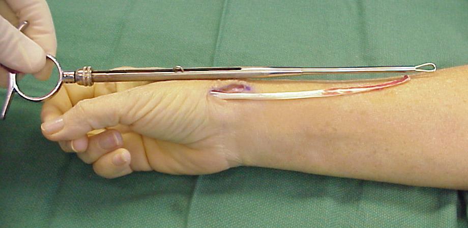 Information Regarding Thumb Arthroplasty - Proliance