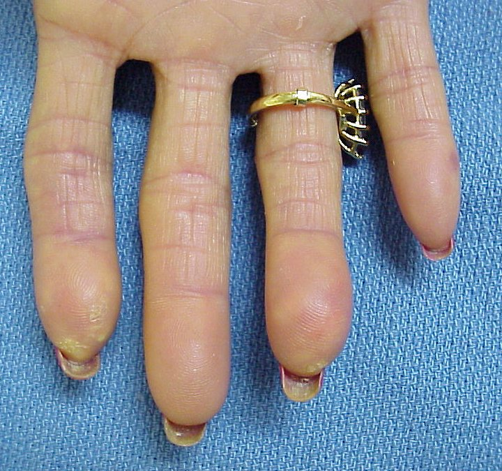 Transformation: CREST syndrome with scleroderma ...