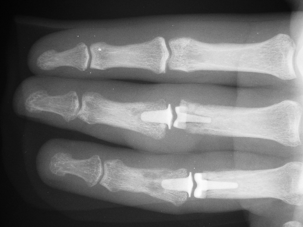 Reconstruction: Pyrolytic carbon proximal interphalangeal ...